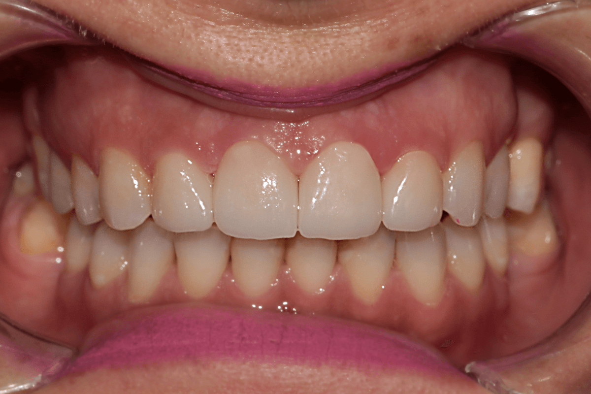 Digital Smile Design - DSD after