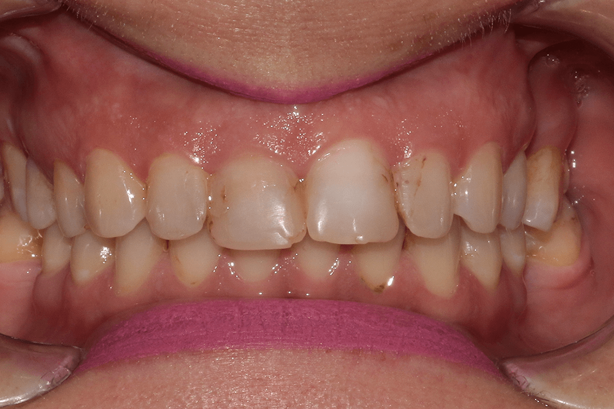 Digital Smile Design - DSD before